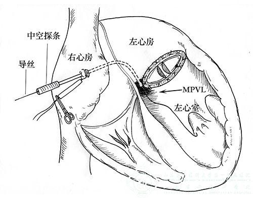 原创技术,推陈出新——心外科成功解决大型二尖瓣瓣周漏封堵难题