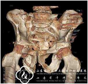 创伤骨科基于多方向通道螺钉技术经皮微创治疗骨盆骨折效果良好