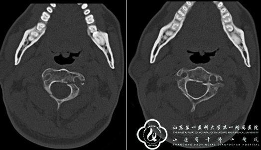 骨创伤外科经皮微创枢椎椎弓根螺钉固定治疗一例Hangman骨折患者