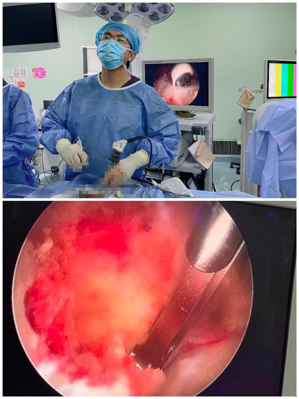 脊柱外科团队完成院内首例ULIF腰椎微创手术