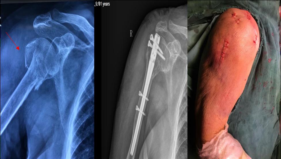 骨折治疗,微创先行——我院骨折微创特色专业门诊开诊