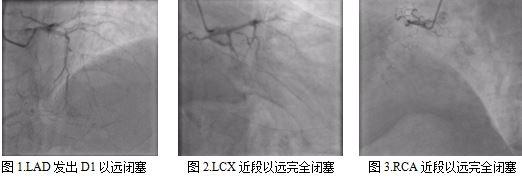 心内二科完成医院首例stingary球囊辅助ADR开通CTO病变,历经5次介入手术成功救治一名等待心脏移植的终末期患者
