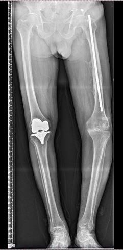 3D打印——让复杂膝关节置换更简单,更精准