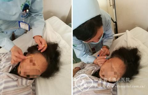 十九病区护理新项目——颞浅动脉旁皮下注射