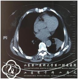 疑是肺癌惹的祸,却是异物在作孽:支气管镜下从疑似肺癌患者气道内取出辣椒皮!