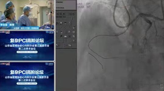 复杂PCI高阶论坛心内科介入手术直播,展现我院冠脉介入水平实力