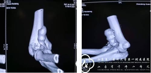 妙手扶桑梓,高医展奇效——骨创科完成一例特殊肘关节骨折的个体化治疗