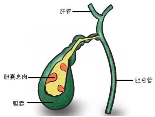 胆囊息肉与胆囊结石