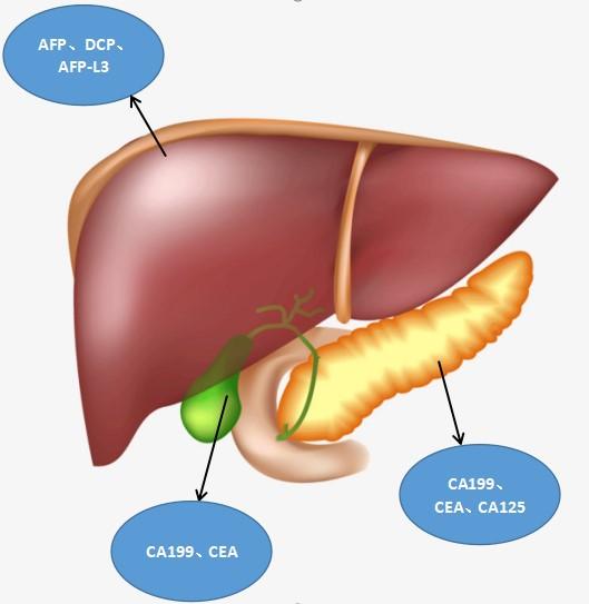 浅谈肝胆胰相关肿瘤标志物          —那些你必须知道的小知识