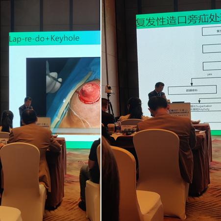 疝与腹壁外科李波出席2021第十四届中国医师协会外科医师年会并作学术报告