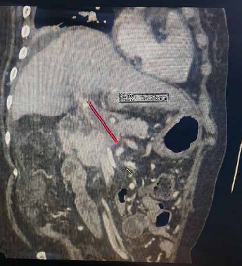 肝移植肝脏外科救治一名复杂终末期肝病患者